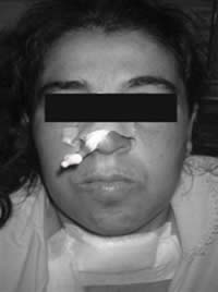 Recuertación de la eclampsia