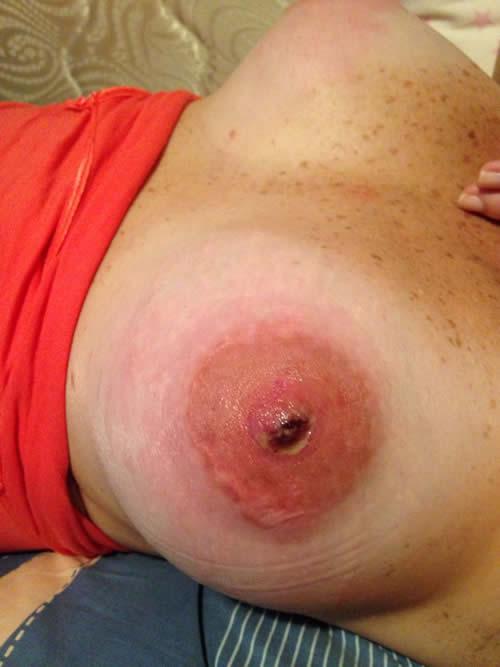 Implantes mamarios fotos piercing pezones